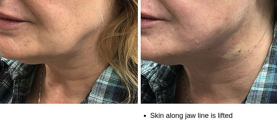 Injectables - Dr Brenna & Three Graces Medi Spa